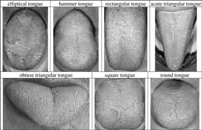 Every tongue contains different types of surface or texture.